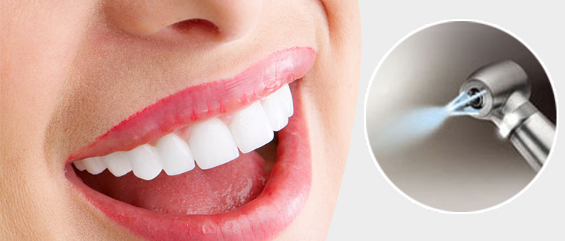 Phuket Teeth Cleaning & Airflow