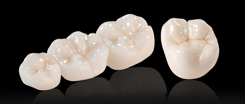 Phuket Dental Crowns