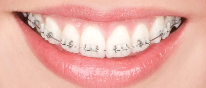 Phuket Orthodontic Braces